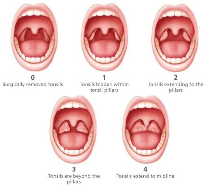 tonsil_grading